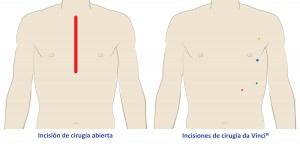 Chest reference
